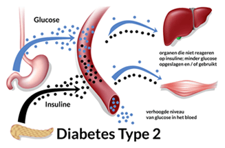diabetes type 2 genezen
